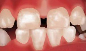 Fluorose – Weiße Flecken auf Kinderzähnen