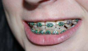 Durchsichtige Zahnspangen – neuer Trend
