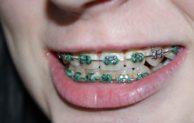 Gerade Zähne ohne Zahnspange? Ja, das geht!