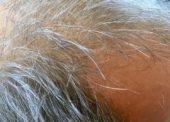 Moderne Haartransplantation – Chancen in der heutigen Zeit