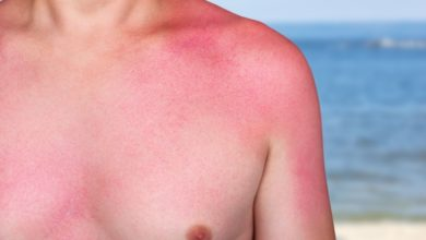 Photo of Hautkrebsvorsorge: 7 Mythen über Hautkrebs